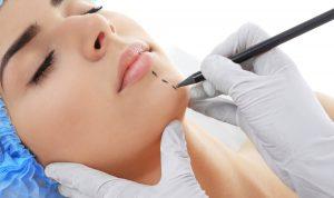 Foto de marcacion para un implante de menton